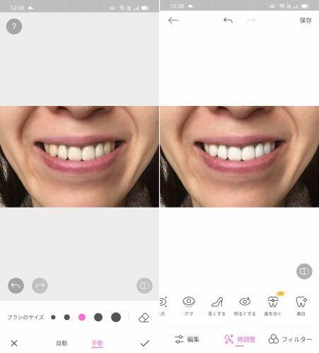 Beauty Camで歯を白くする加工を行った画像