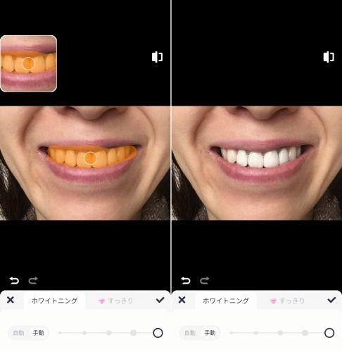 meituで歯を白くした画像