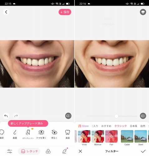 BeautyPlusで歯を白く加工した画像